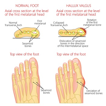 two very tiny sesamoids are found in the underside of the foot near the big  toe  one is on the outer side of the foot and the other bone is close to